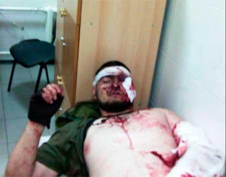 Террористы ночью обстреляли отдел погранслужбы на Луганщине - Цензор.НЕТ 8621